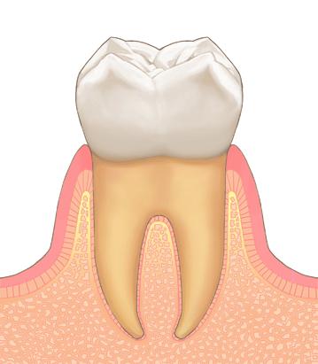 歯周病の進行(臼歯) 通常