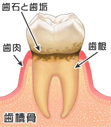 歯周病の進行(臼歯) P1