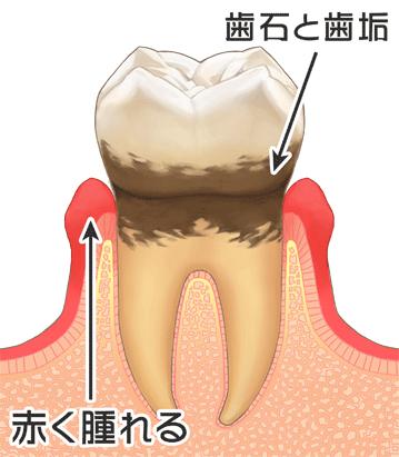 歯周病の進行(臼歯) P3