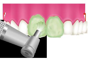 PMTC 歯面のクリーニング