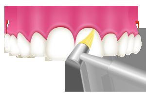 PMTC 歯と歯の隙間を清掃