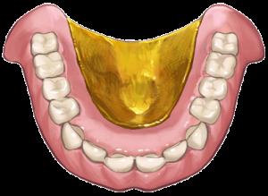 入れ歯の厚みを薄くする金属の入れ歯