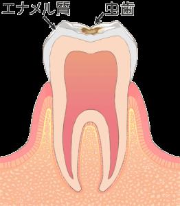 むし歯 虫歯 C1