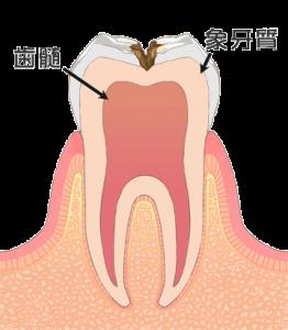 むし歯 虫歯 C2