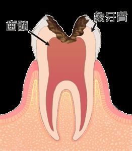 むし歯 虫歯 C3