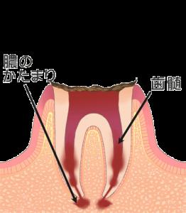 むし歯 虫歯 C4