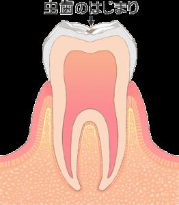 むし歯 虫歯 CO