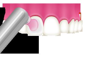 PMTC 歯面の艶出し