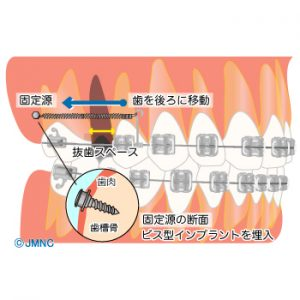 02_05implantkyousei_mechanism02